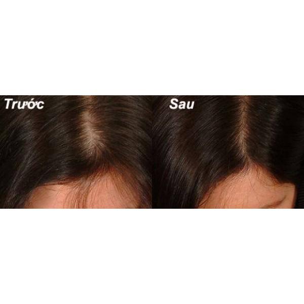 Thuốc mọc tóc Kaminomoto for lady EX