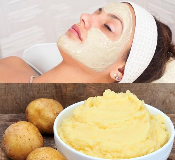 Mặt nạ làm trắng da và trị mụn với khoai tây