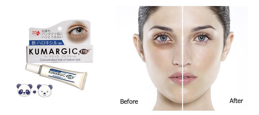 Kem trị thâm vùng mắt Kumargic Nhật xóa tan nếp nhăn hiệu quả